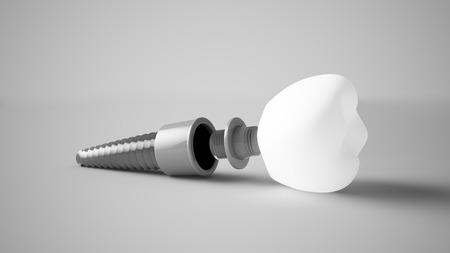 3d rendering ofa dental implant prosthesis 스톡 콘텐츠
