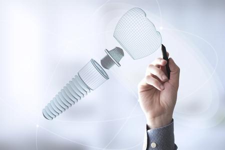 man designing dental prosthesis