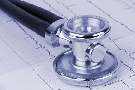 Closeup of stethoscope lying on ecg diagram