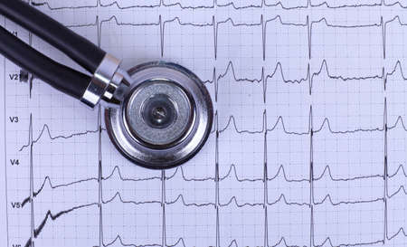 Closeup of stethoscope lying on ecg diagram photo