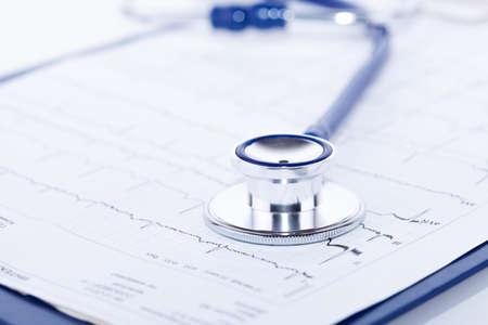 Blaues Stethoskop auf blauem Zwischenablage mit EKG