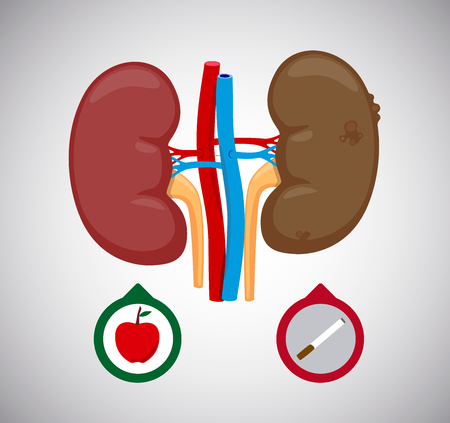 Healthy and sick kidney vector Illustration. Sick human internal kidneys organ. kidney cancer. Stock Illustratie