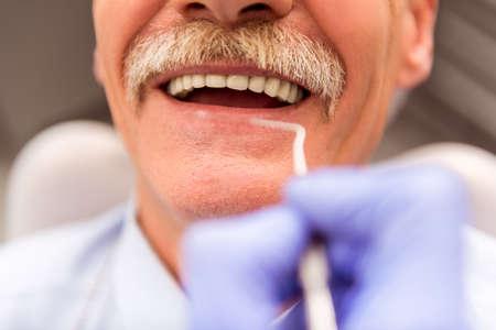 persona de la tercera edad: El hombre mayor en una revisión de un dentista, sentado en una silla