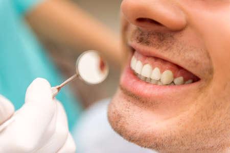 dientes sanos: De cerca. Hermosa dientes blancos hombre en una revisión de la dantist