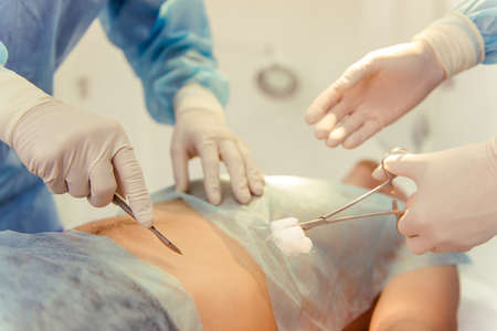 surgeon: Team surgeons are performing an operation using medical instruments, in a modern operating room, close up