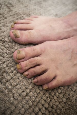 Onychomycosis with fungal nail infection two feet.
