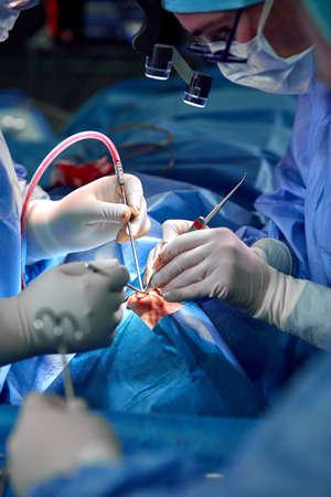 Neuscorrectie close-up van neusoperatie. De handen van de werkinstrumenten van de chirurg in witte handschoenen, gestikt