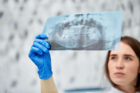 picture of female doctor or dentist looking at x-ray