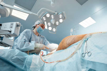 cosmetic liposuction surgery in actual operating room setting showing surgeons group during operation