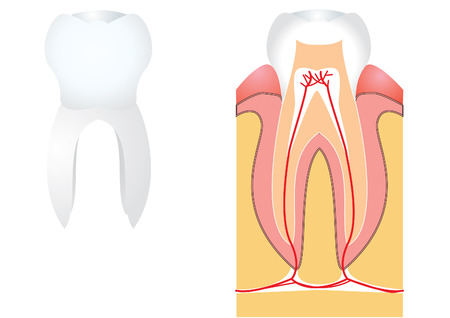 carious: Tooth for medicine Illustration