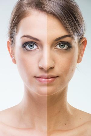 rejuvenating: Prima Dopo - Chirurgia plastica viso - prima e dopo la concia Archivio Fotografico