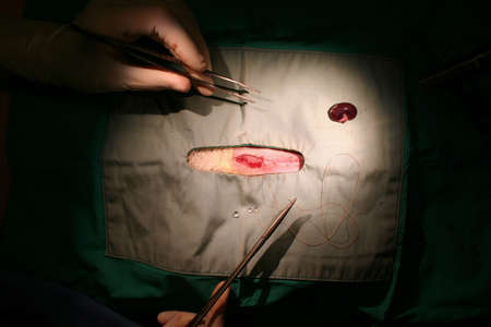 suture: Image showing the closure of a wound on an operating table. Clearly visible are surgeons hands, tweezers, needle and suture material and the sterile drapes around the incision.