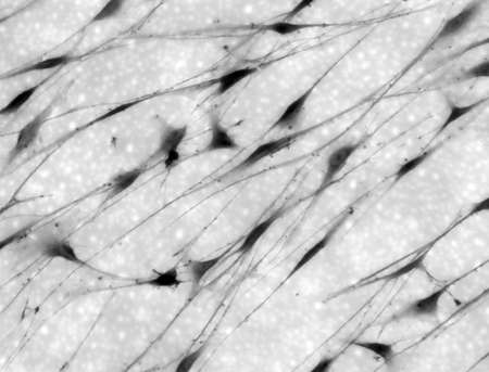 neuronal: A phase contrast image of Schwann Cells in culture. Schwann cells support the nervous system in the body by wrapping themselves around axons and providing insulation for the travelling electrical impulses.