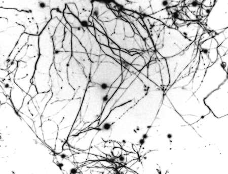 neuronal: A fluorescent micrograph of a neuron in culture. Image nicely shows off neuronal cell body and the dendritic extensions.