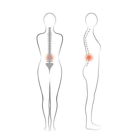 Vector woman body shape,  Vertebrae pain  Illustration