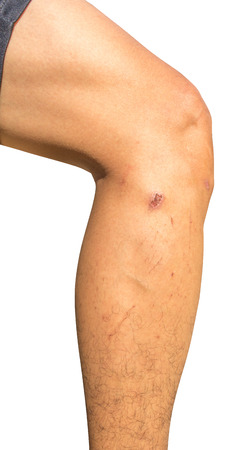 scars: Scars on leg Isolated on white background with clippingpath Stock Photo