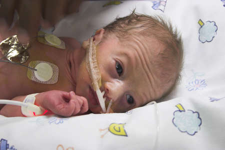 icu: one day old premature bbaby boy in ICU Stock Photo