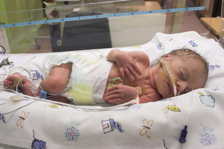 intensive: Premature baby sleeping in ICU only one day old
