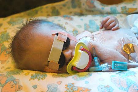vaderlijk: Op een dag oude baby krijgt foto behandeling tegen geelzucht Stockfoto