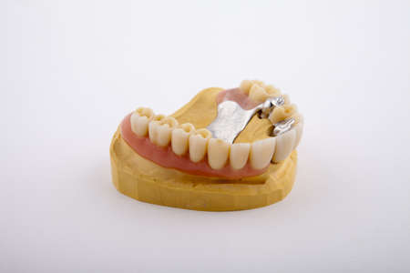 model of the jaw with a prosthesis on a white background Stock Photo - 9059930