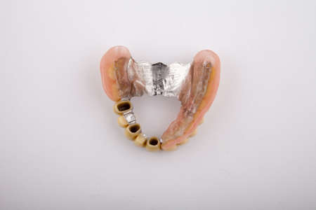 model of the jaw with a prosthesis on a white background