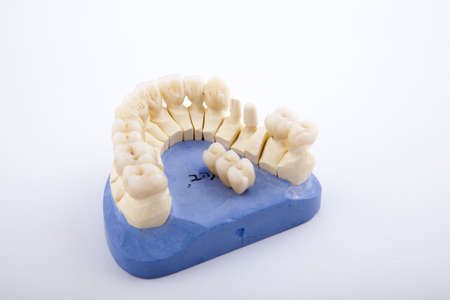 surrogate: model of the jaw with a prosthesis on a white background