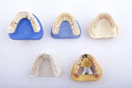 various models of jaw on a white background