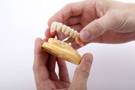 model of the jaw in his hands on a white background Imagens