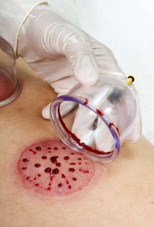 Medische geopend cupping kopje toont vuil bloed stroomt isoleren markering op de huid Stockfoto