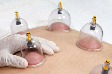 cupping: Multiple cup of medical cupping therapy on human body