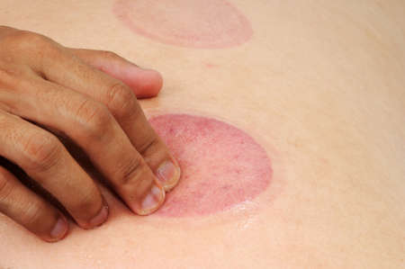 cupping glass cupping: The blood marks massaged with oil to ensure blood circulation to normal at the mark area Stock Photo