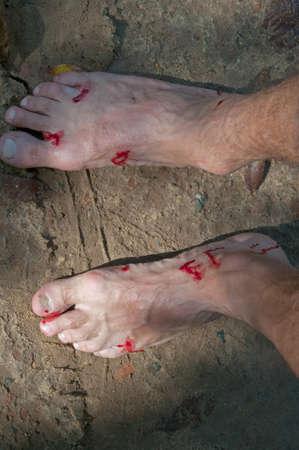 sanguijuela: los pies ensangrentados del hombre close-up. picadura de sanguijuela efecto posterior. Foto de archivo