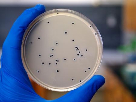 Bacterial Colonies    photo