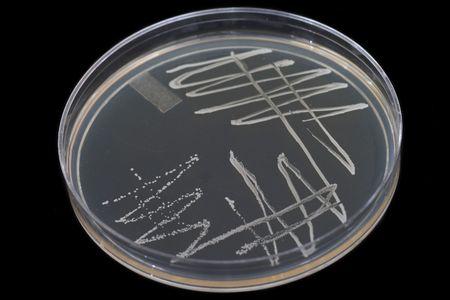 bacterial: Bacterial Colonies