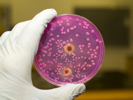petri: Yeast And Molds