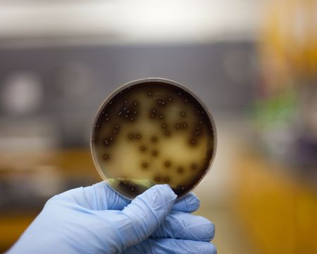 Culture of bacteria on a petri plate being examined.