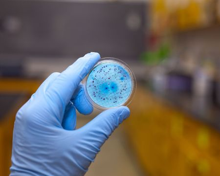 Bacteria growing on a petri dish. photo