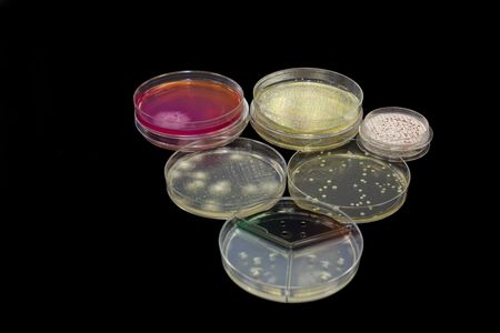 Different petri plates containing bacteria, yeast and mold.