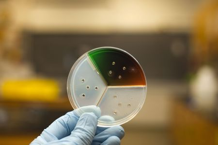 Petri plate being examined for bacteria growth.