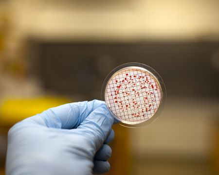 microbial: Petri plate being examined for bacteria. Stock Photo