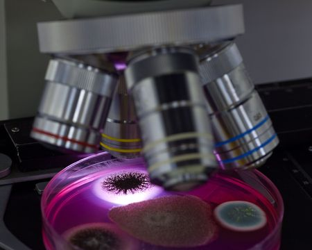 Studying mold under a microscope from food and air. Standard-Bild