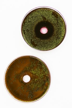 coli: Zone of inhibition produced by Lingonberry extract on an EMB agar plate containing E. coli and a control. Stock Photo