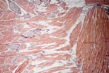 Se corrigió la sección transversal del deslizamiento del tejido muscular, vista microscópica 100x Foto de archivo