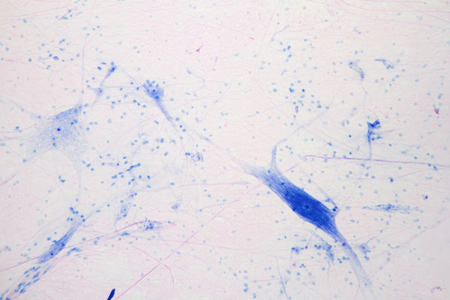 Microscope view of giant multipolar neuron