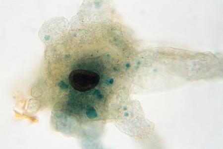 이질 일으킬 수있는 아메바의 현미경보기.