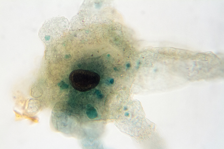 microscope view of an amoeba which can cause dysentery. Archivio Fotografico