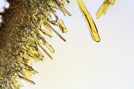 Crystals forming in solution viewed through the microscope