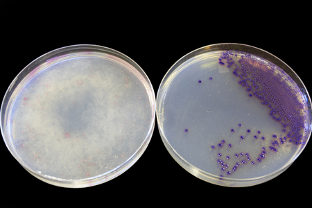 Food safety - 2 agar plates with one showing positive for E coli and one negative. Stock Photo