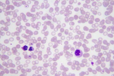 Blood smear with the malaria parasite Plasmodium vivax. Stock Photo