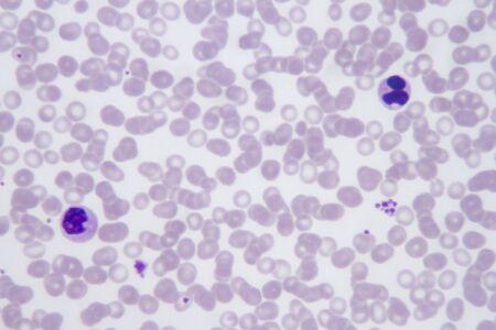 Blood smear with the malaria parasite Plasmodium vivax.
